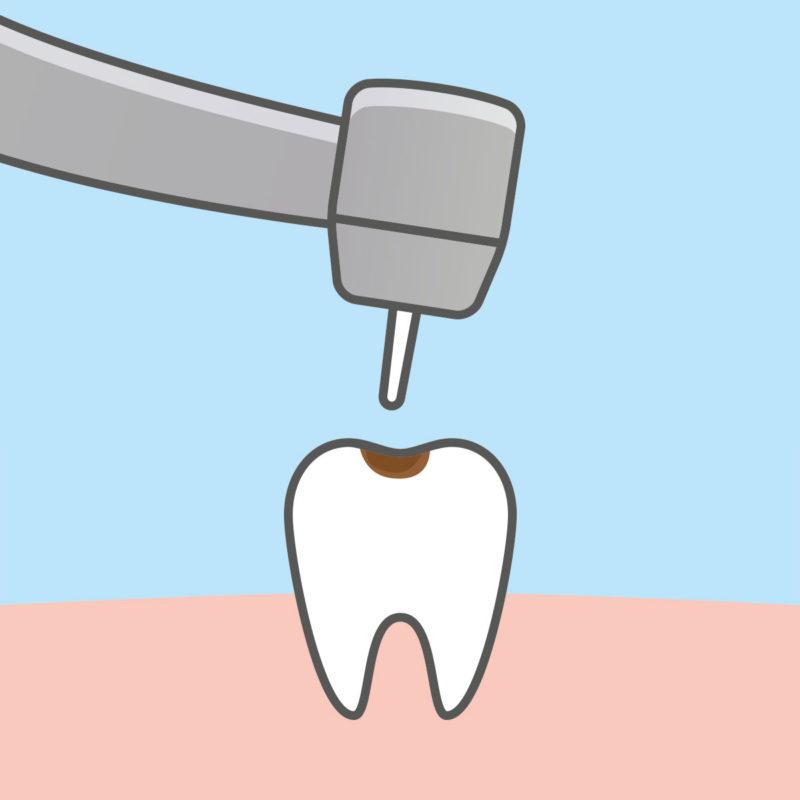 Otros servicios dentales